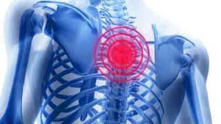 видео Болит спина в области лопаток (ниже, выше): причины, что делать, почему болят мышцы