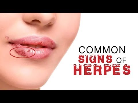 Common Signs of Herpes