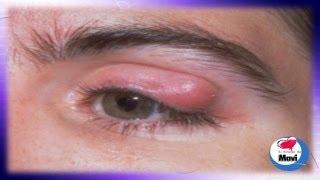 ¿Por qué salen los orzuelos en los ojos? - Orzuelo tratamiento natural - Causas