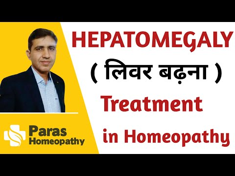 Hepatomegaly Symptoms,Causes and Treatment   लीवर में सुजन का इलाज   Homeopathy Treatment   in Hindi