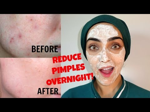 Disprin Tablet Facial To REMOVE PIMPLES FAST ~ Immy