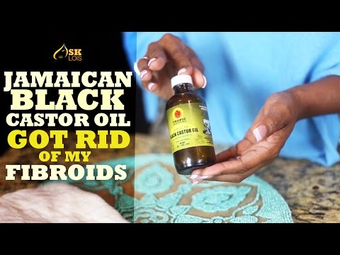 Get Rid of Fibroids with Jamaican Black Castor Oil! - YouTube
