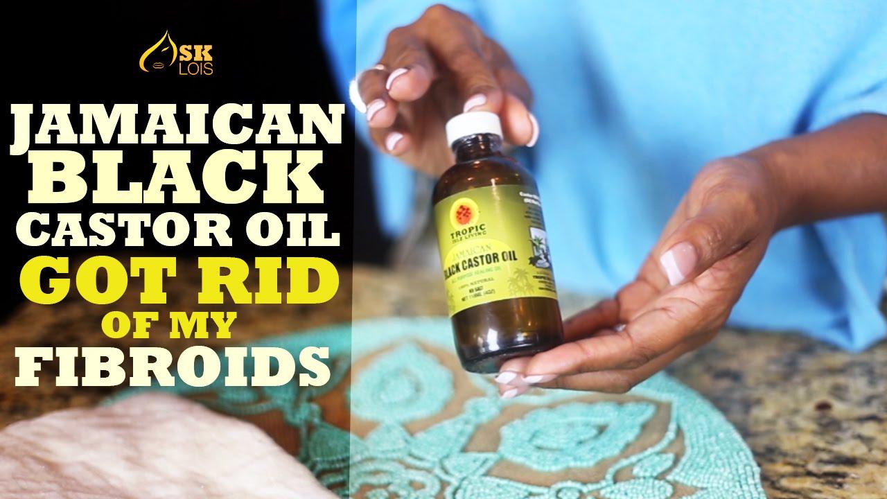 get rid of fibroids with jamaican black castor oil youtube. Black Bedroom Furniture Sets. Home Design Ideas
