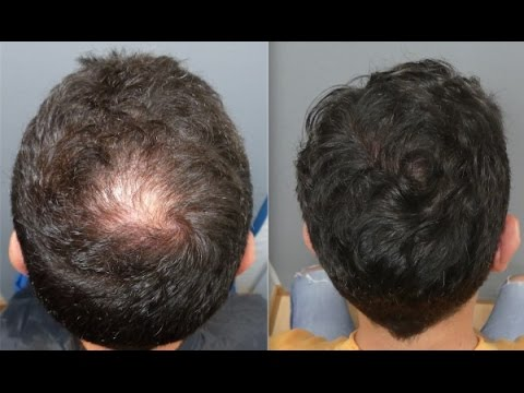 2301 Grafts. Hair Transplant by FUE Technique. Injertocapilar.com.1716/2016
