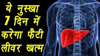 Fatty liver, फैटी लीवर | Home Remedy | ये नुस्खा करेगा फैटी लीवर ठीक | Boldsky