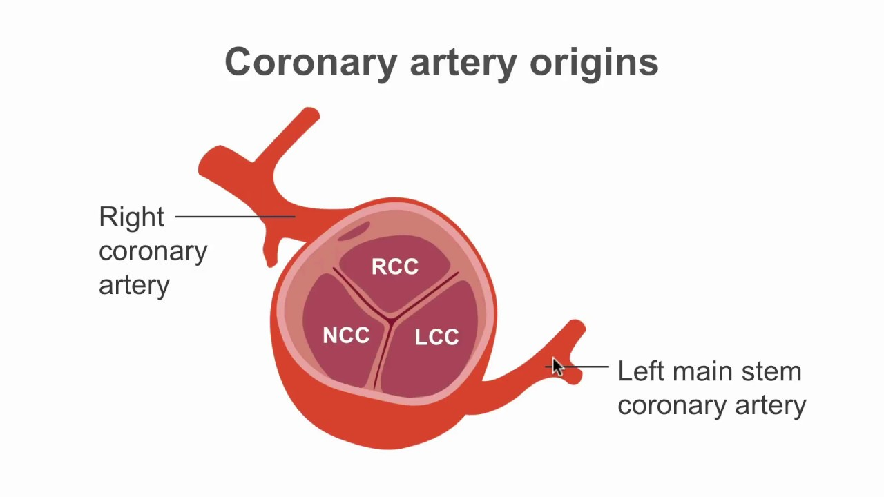 How To Find The Coronary Artery Origins Using Ct Youtube