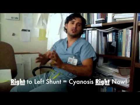 Congenital Heart Disease Shunt Mnemonic