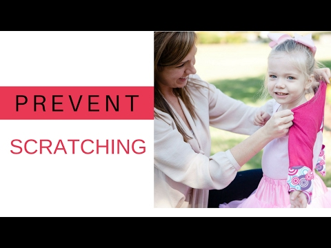 How to Prevent Scratching In Babies & Children with Scratch Me Not Mittens