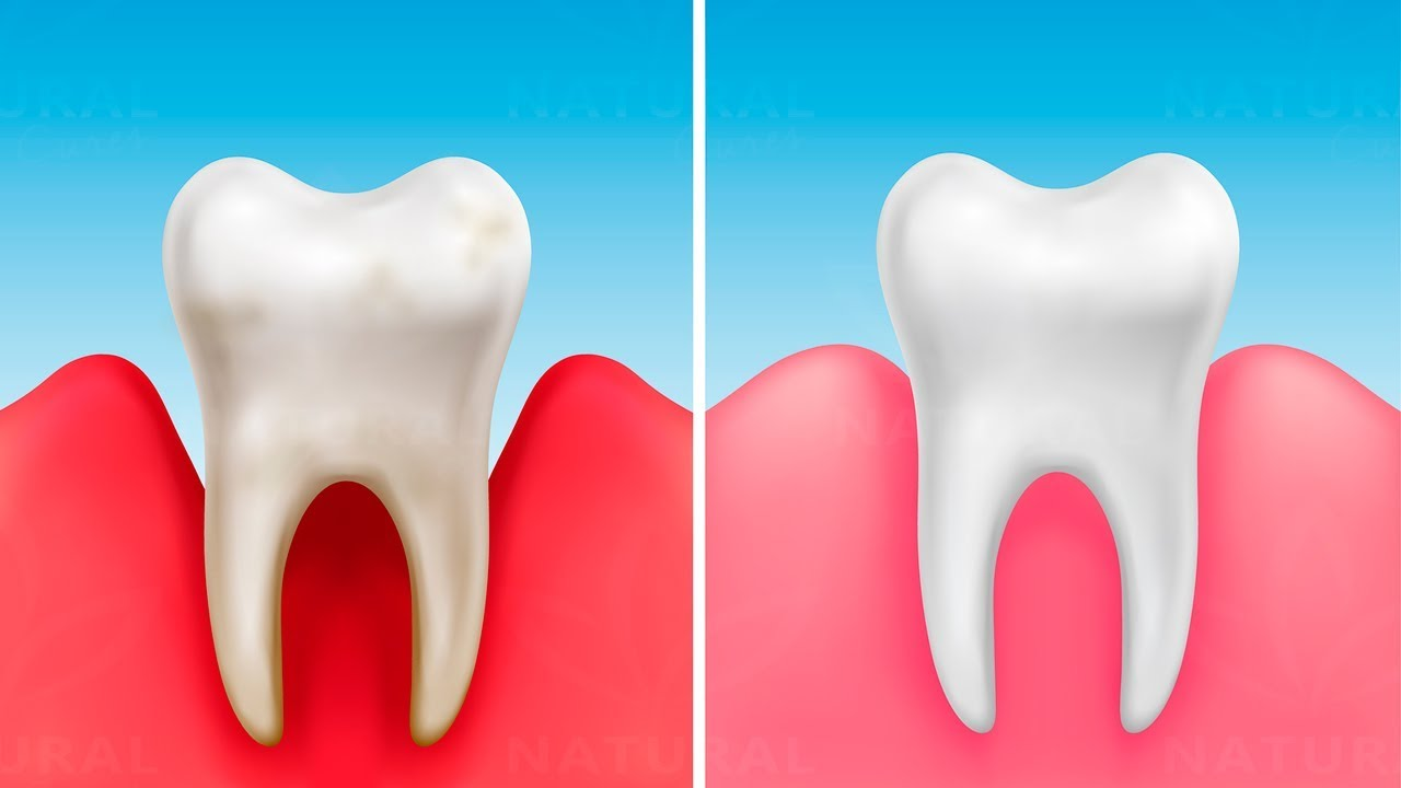These Vitamins Can Prevent Cavities and Make Your Teeth Stronger