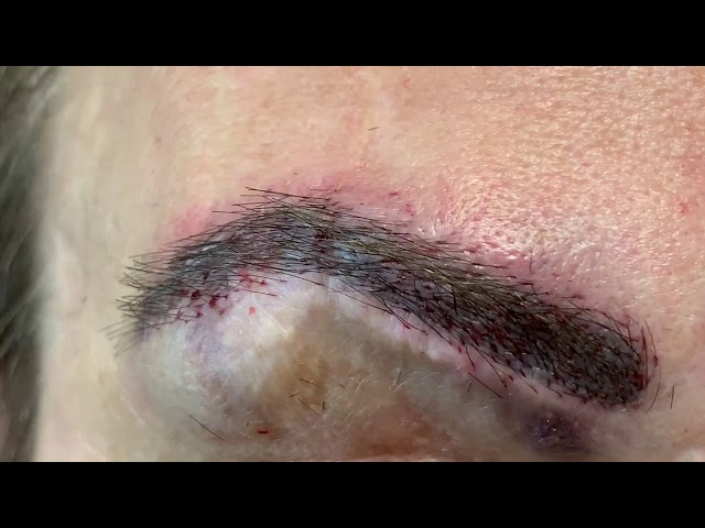 Dallas Eyebrow Scar Hair Transplant