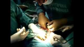Usus lengket & mlintir terjadi paska operasi buka perut(laparotomi), so kita harus yakin apakah mema.