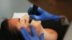 Microneedling Treatment at Sunset Dermatology in South Miami