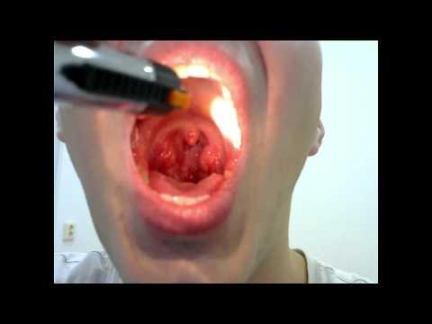 Хронический тонзиллит симптомы и эффективное лечение