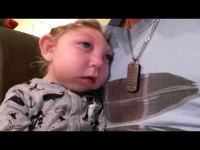 Baby Born Missing Large Part Of Brain and Skull Continues To Defy the Odds