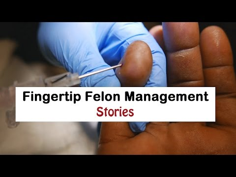 Fingertip Felon Management Stories