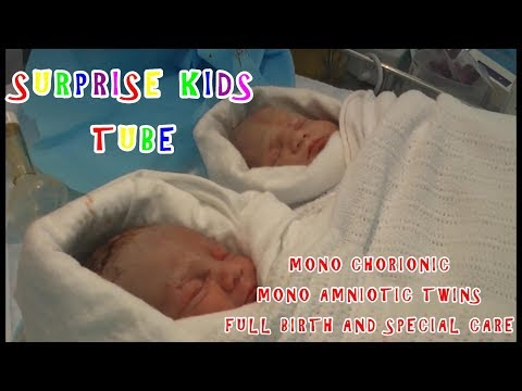 FLASH BACK MONO CHORIONIC MONO AMNIOTIC TWINS FULL BIRTH AND SPECIAL CARE 2008