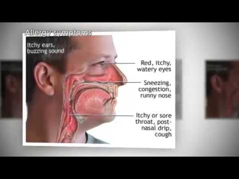 How Allergies Work Animation – Why Allergic Reactions Occur Video – Symptoms Sneezing Treatment
