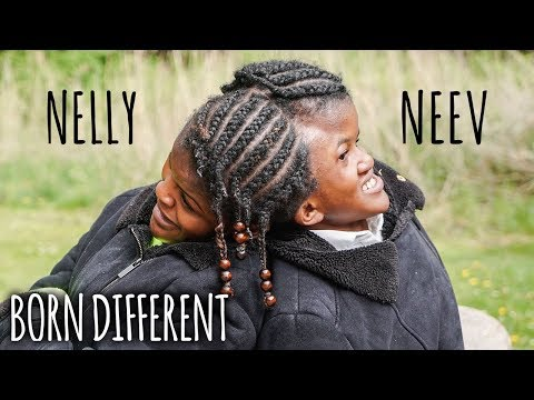 Conjoined Twin Sisters Attached At The Head | BORN DIFFERENT