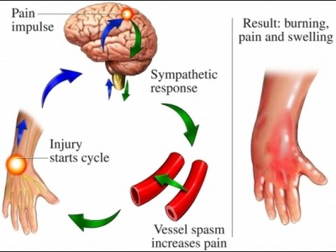 Image result for Complex regional pain syndrome