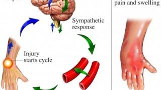 Complex Regional Pain Syndrome (CRPS)