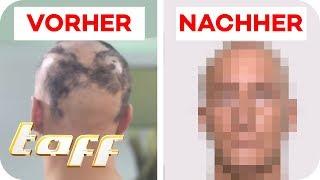 Kreisrunder Haarausfall nach Unfall! Kann man das retten? | SOS - Einsatz der Beauty-Retter | taff