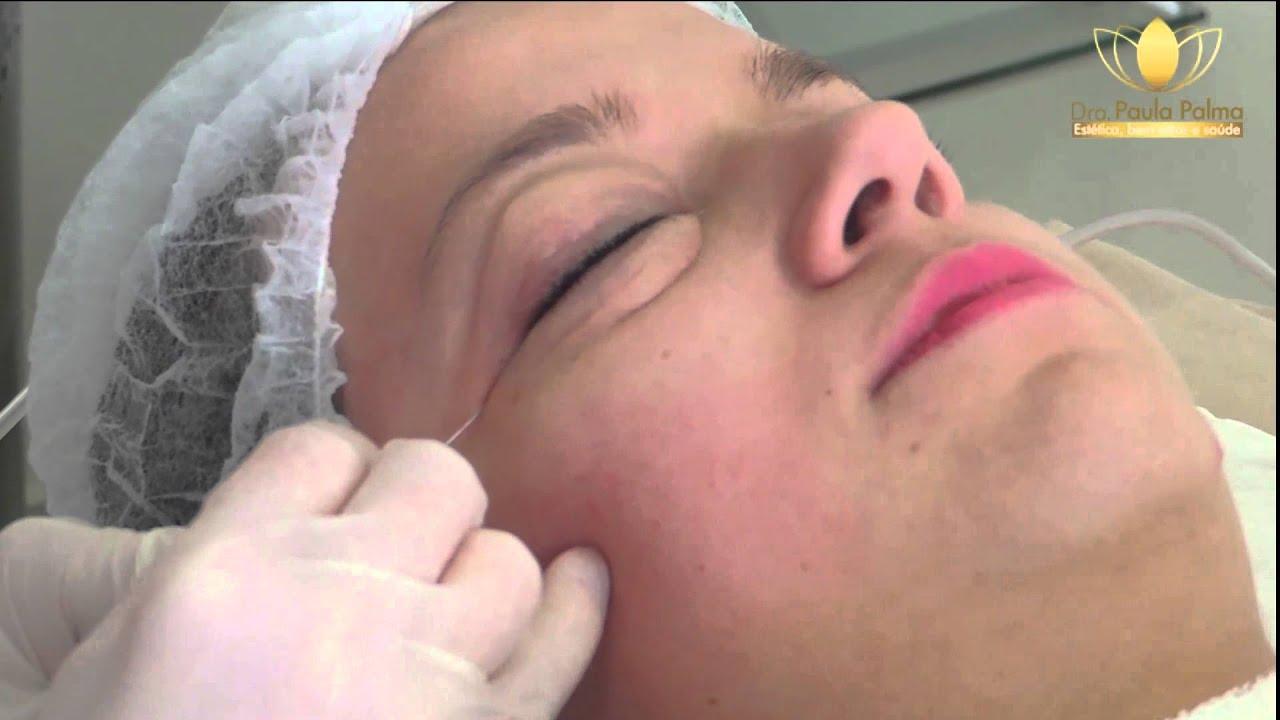 Carboxiterapia facial como trabaja