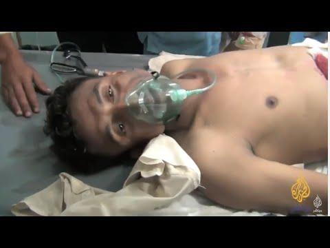 فيديو: مؤثر.. جريح من المقاومة اليمنية : أنا مديون، حتى لفظ أنفاسه الأخيرة