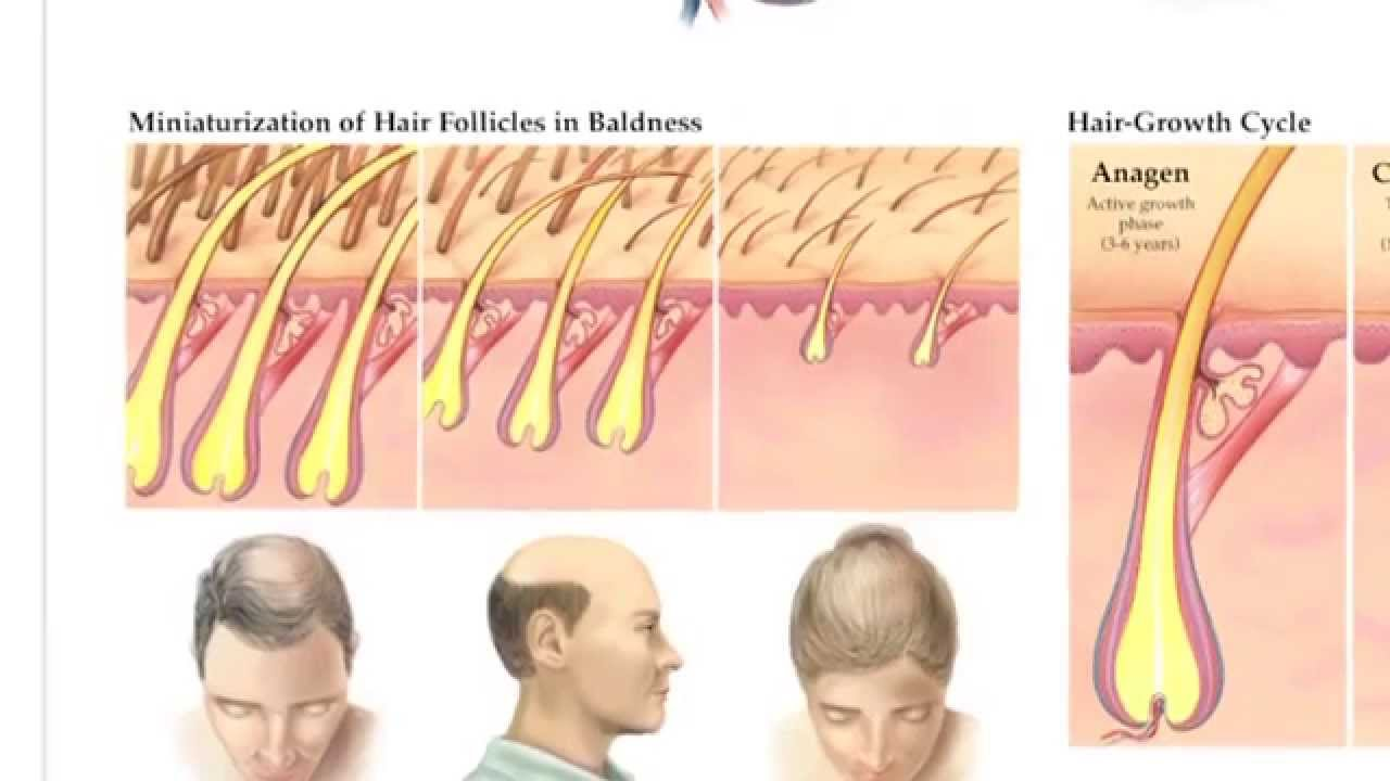 jk laser hair therapy video laser for treating hair loss and