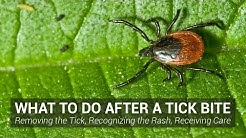 What to Do After a Tick Bite - Johns Hopkins Lyme Disease Research Center