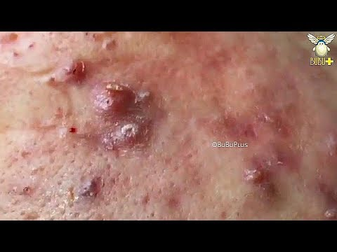 How to Get Rid of Blackheads, Acne with Oddly Satisfying Relaxing Sleep  Music 81204 | BuBuPlus