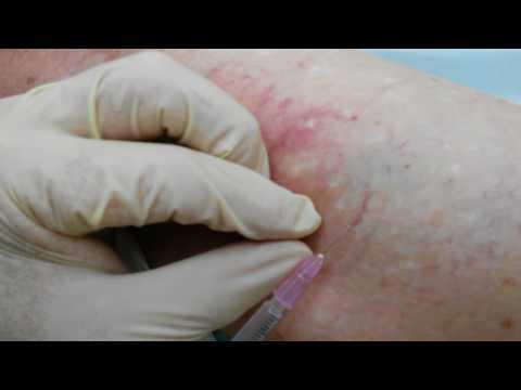 Склеротерапия сосудистых звездочек ноги
