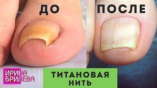 ПЕДИКЮР Динамика выравнивания ногтя с помощью титановой нити Чистим подногтевые мозоли