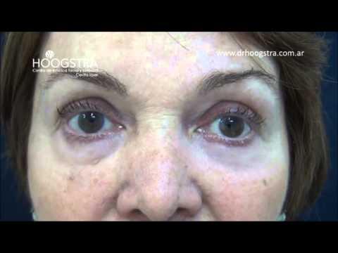 Cirugía de párpados sin cicatrices - Relato de paciente
