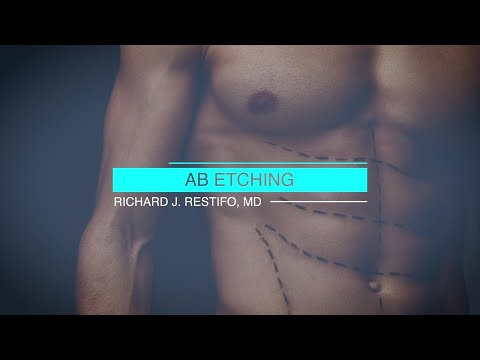 Straight Talk About Abdominal Etching