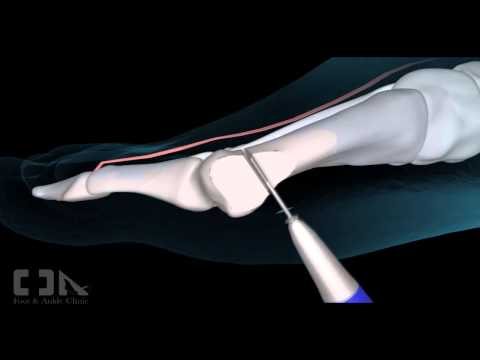 Minimally Invasive Bunion/Hallux Valgus Surgery