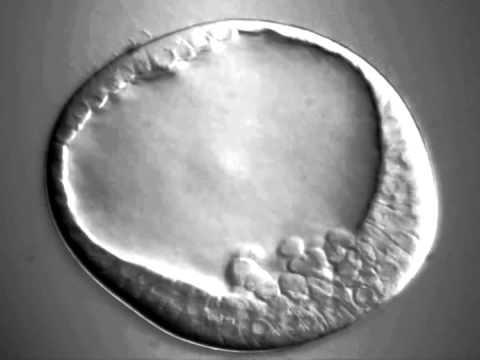 Sea Urchin Early Gastrulation - YouTube