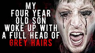 """""""My Son Woke Up with a Head of Grey Hairs"""" from UnsettlingStories   CreepyPasta Storytime"""