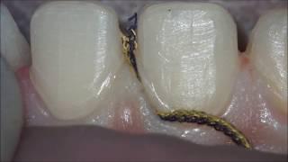 видео Зачем проводят препарирование под металлокерамическую коронку?