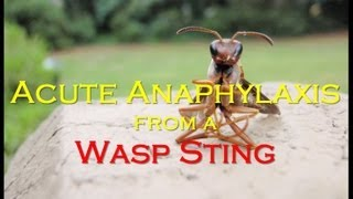 Acute Anaphylaxis from a Wasp Sting