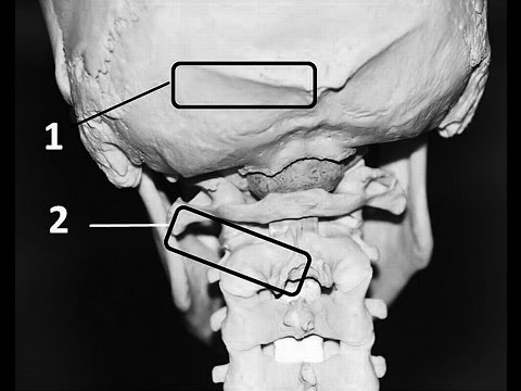 The epicranius is essentially two muscle gasters with a strong fascial connection between them calle.
