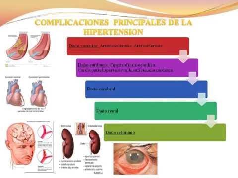 Prevención de la hipertensión arterial. - YouTube