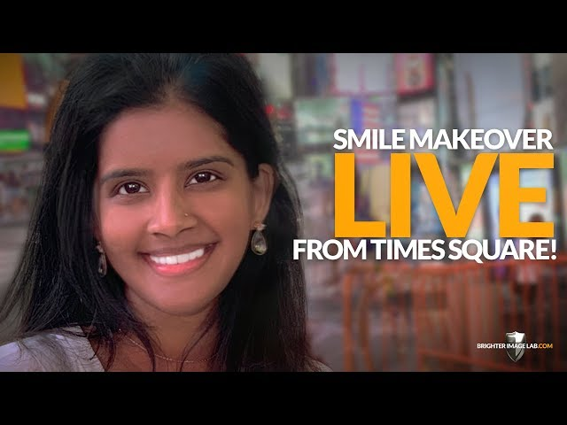 India Client Gets Smile Makeover Live in NYC Dental Veneers - Brighter Image Lab No Cosmetic Dentist