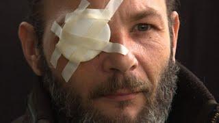 Gilets Jaunes:Jim a perdu un oeil, mais pas l'envie de continuer
