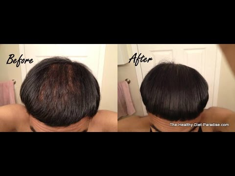 Learn How to Regrow Thick Hair With the Science of Nutrition