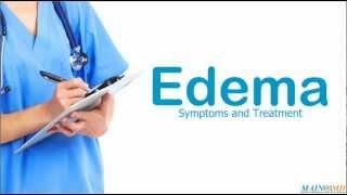 Perimaleolar bilateral edema
