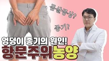 몸살기운과 엉덩이 종기의 원인! 항문 주위 농양