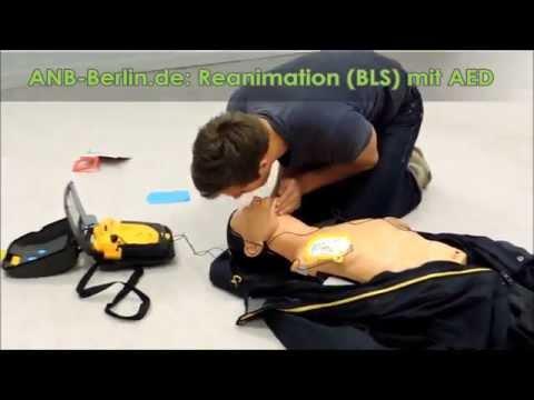 Wiederbelebung (Reanimation), Defibrillation mit Automatisiertem-Externen-Defi (AED) Kammerflimmern