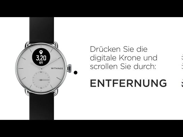 [DE] So Benutzen Sie ScanWatch