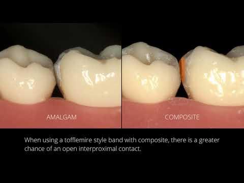 Amalgam vs Composite: V3 Tofflemire Solution