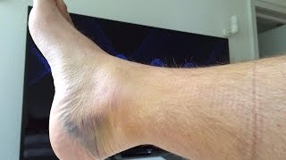 Achilles Tendon Recovery #1-non-surgical, early weight bearing option